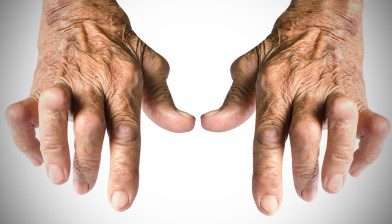 artrite-reumatoide-1217